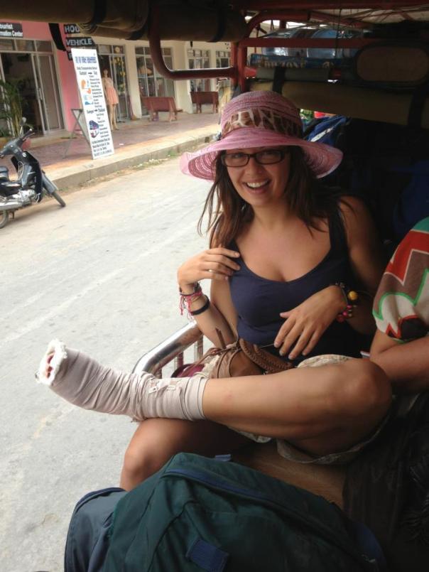 Broken toe!